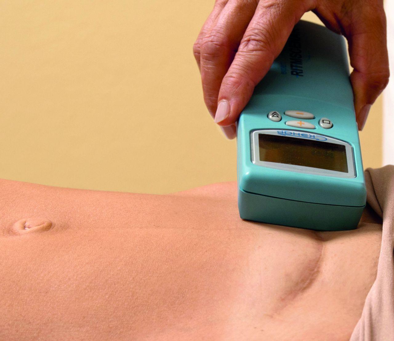 Skenar Methode Narbenentstörung